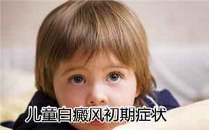 儿童白癜风的预防工作有哪些