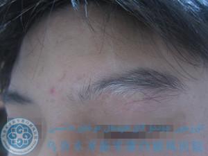 刘某/男性/局限型/眼部白斑