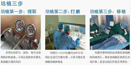 黑色素细胞培植术治疗效果与费用
